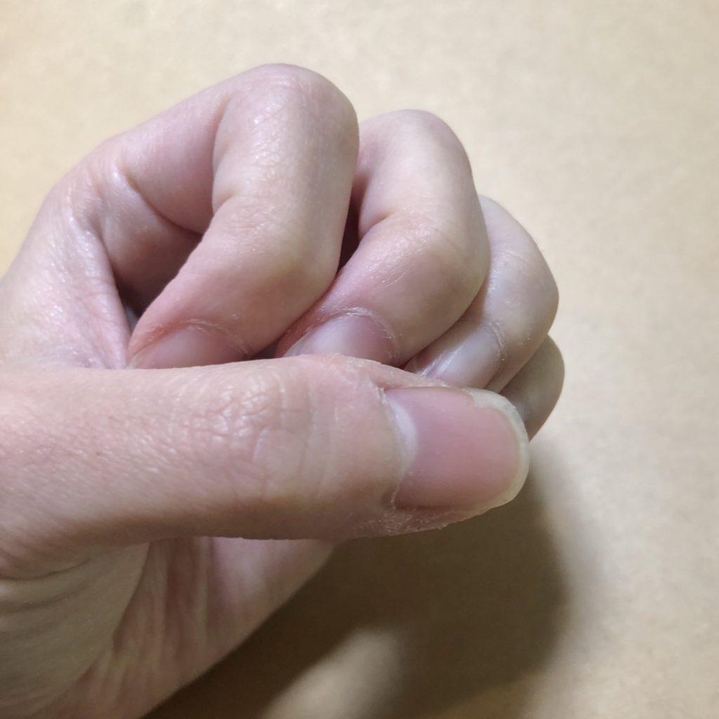 手を丸めた写真。親指の爪の光沢がない。