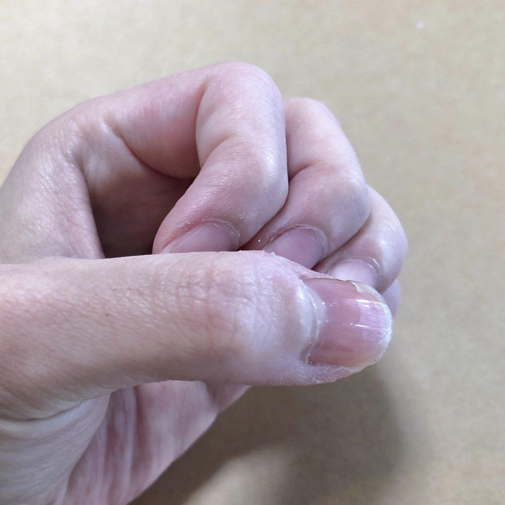 手を丸めている写真。指先が写っている。他の指に比べて親指の爪にだけ光沢がある。
