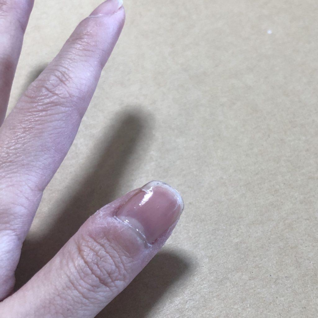 親指に補強コートを施した爪。光の反射が見える。少しツヤツヤしている。